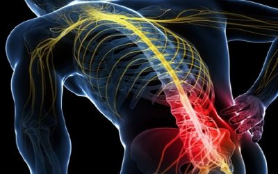 Chiropractic Care and Treatment for Sciatica Pain